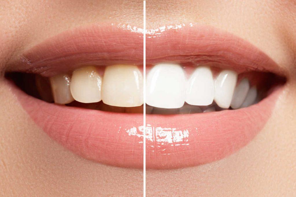 Blanqueamiento dental antes de tu boda. Luce una sonrisa perfecta